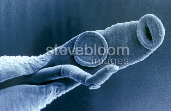 Schistosome (Bilharzia) parasites seen through electron microcope
