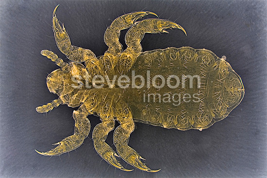 Head lice during its first moult